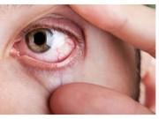 retinopatia-diabetica-trattamento.jpg